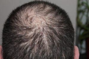 Hårtab - hårtabsbehandling - finasterid